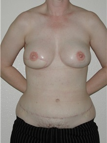 Breast Reconstruction After Photo by Dann Leonard, MD; Salem, OR - Case 10231