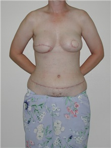 Breast Reconstruction Before Photo by Dann Leonard, MD; Salem, OR - Case 10231