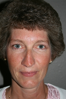 Eyelid Surgery After Photo by Dann Leonard, MD; Salem, OR - Case 10232
