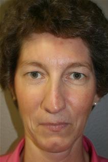 Eyelid Surgery Before Photo by Dann Leonard, MD; Salem, OR - Case 10232