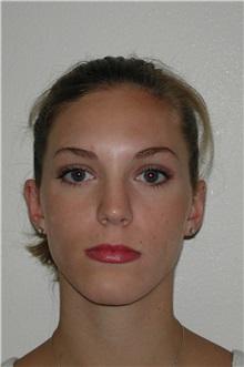 Ear Surgery After Photo by Dann Leonard, MD; Salem, OR - Case 21665