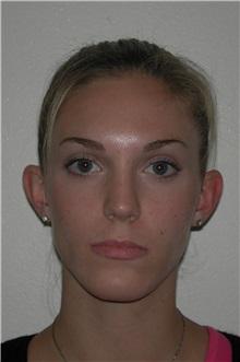 Ear Surgery Before Photo by Dann Leonard, MD; Salem, OR - Case 21665
