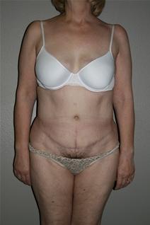 Tummy Tuck After Photo by Dann Leonard, MD; Salem, OR - Case 21682