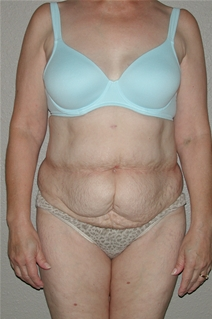 Tummy Tuck Before Photo by Dann Leonard, MD; Salem, OR - Case 21682