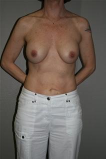 Breast Augmentation After Photo by Dann Leonard, MD; Salem, OR - Case 21696
