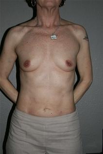 Breast Augmentation Before Photo by Dann Leonard, MD; Salem, OR - Case 21696