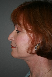 Facelift After Photo by Dann Leonard, MD; Salem, OR - Case 21697