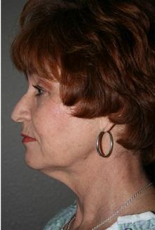 Facelift Before Photo by Dann Leonard, MD; Salem, OR - Case 21697
