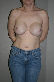 Breast Reconstruction After Photo by Dann Leonard, MD; Salem, OR - Case 23407
