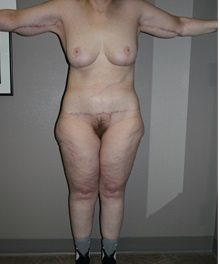 Body Contouring After Photo by Dann Leonard, MD; Salem, OR - Case 23408
