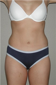 Tummy Tuck After Photo by Dann Leonard, MD; Salem, OR - Case 6672