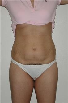Tummy Tuck Before Photo by Dann Leonard, MD; Salem, OR - Case 6672