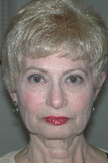Facelift Before Photo by Dann Leonard, MD; Salem, OR - Case 6674
