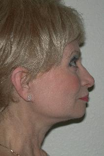 Facelift After Photo by Dann Leonard, MD; Salem, OR - Case 6674