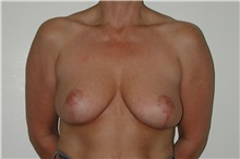 Breast Reduction After Photo by Dann Leonard, MD; Salem, OR - Case 6676