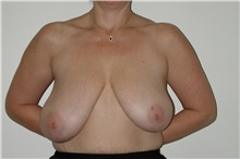 Breast Reduction Before Photo by Dann Leonard, MD; Salem, OR - Case 6676