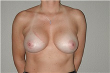 Breast Augmentation After Photo by Dann Leonard, MD; Salem, OR - Case 6678
