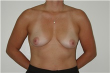 Breast Augmentation Before Photo by Dann Leonard, MD; Salem, OR - Case 6678