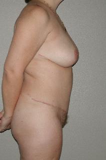 Tummy Tuck After Photo by Dann Leonard, MD; Salem, OR - Case 6784