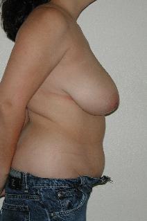 Tummy Tuck Before Photo by Dann Leonard, MD; Salem, OR - Case 6784