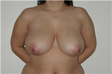 Breast Reduction Before Photo by Dann Leonard, MD; Salem, OR - Case 6785
