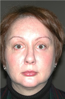 Eyelid Surgery After Photo by Dann Leonard, MD; Salem, OR - Case 8715