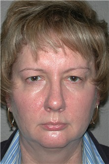 Eyelid Surgery Before Photo by Dann Leonard, MD; Salem, OR - Case 8715