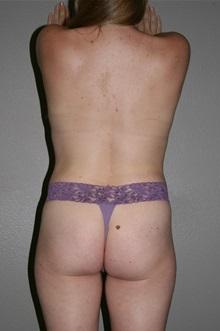 Liposuction After Photo by Dann Leonard, MD; Salem, OR - Case 8717