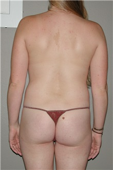 Liposuction Before Photo by Dann Leonard, MD; Salem, OR - Case 8717