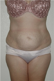 Liposuction Before Photo by Dann Leonard, MD; Salem, OR - Case 8718