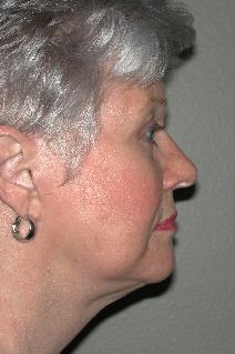 Facelift After Photo by Dann Leonard, MD; Salem, OR - Case 8729