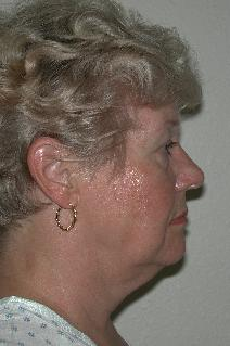 Facelift Before Photo by Dann Leonard, MD; Salem, OR - Case 8729