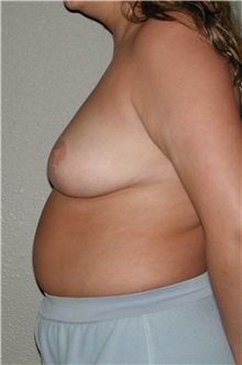 Breast Reduction After Photo by Dann Leonard, MD; Salem, OR - Case 8733
