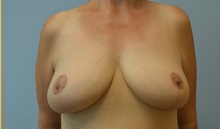 Breast Reduction After Photo by Edwin Austin, MD; Salem, OR - Case 30942