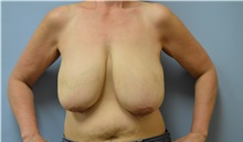 Breast Reduction Before Photo by Edwin Austin, MD; Salem, OR - Case 30942