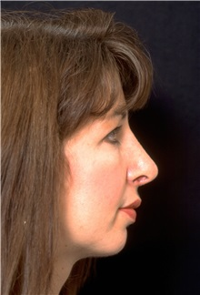 Rhinoplasty After Photo by George Toledo, MD; Dallas, TX - Case 34766