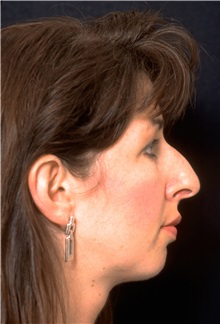 Rhinoplasty Before Photo by George Toledo, MD; Dallas, TX - Case 34766
