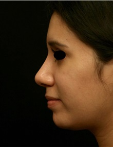 Rhinoplasty After Photo by George Toledo, MD; Dallas, TX - Case 34767