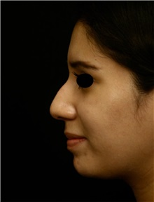 Rhinoplasty Before Photo by George Toledo, MD; Dallas, TX - Case 34767