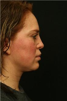 Rhinoplasty After Photo by George Toledo, MD; Dallas, TX - Case 34768