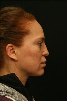 Rhinoplasty Before Photo by George Toledo, MD; Dallas, TX - Case 34768