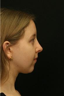 Rhinoplasty After Photo by George Toledo, MD; Dallas, TX - Case 34775