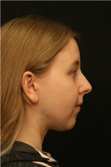 Rhinoplasty Before Photo by George Toledo, MD; Dallas, TX - Case 34775
