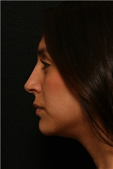 Rhinoplasty After Photo by George Toledo, MD; Dallas, TX - Case 34776
