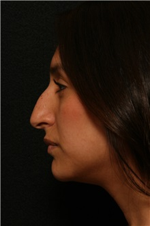Rhinoplasty Before Photo by George Toledo, MD; Dallas, TX - Case 34776