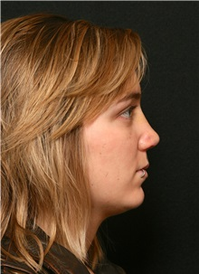 Rhinoplasty After Photo by George Toledo, MD; Dallas, TX - Case 34780