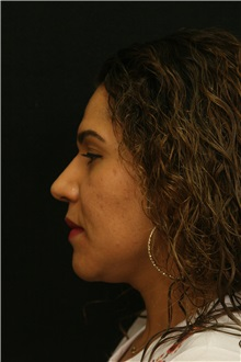 Rhinoplasty After Photo by George Toledo, MD; Dallas, TX - Case 34783