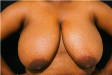 Breast Reduction Before Photo by George Toledo, MD; Dallas, TX - Case 34877