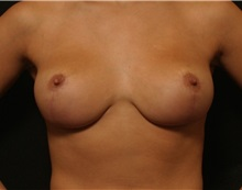Breast Reduction After Photo by George Toledo, MD; Dallas, TX - Case 34879