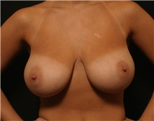 Breast Reduction Before Photo by George Toledo, MD; Dallas, TX - Case 34879